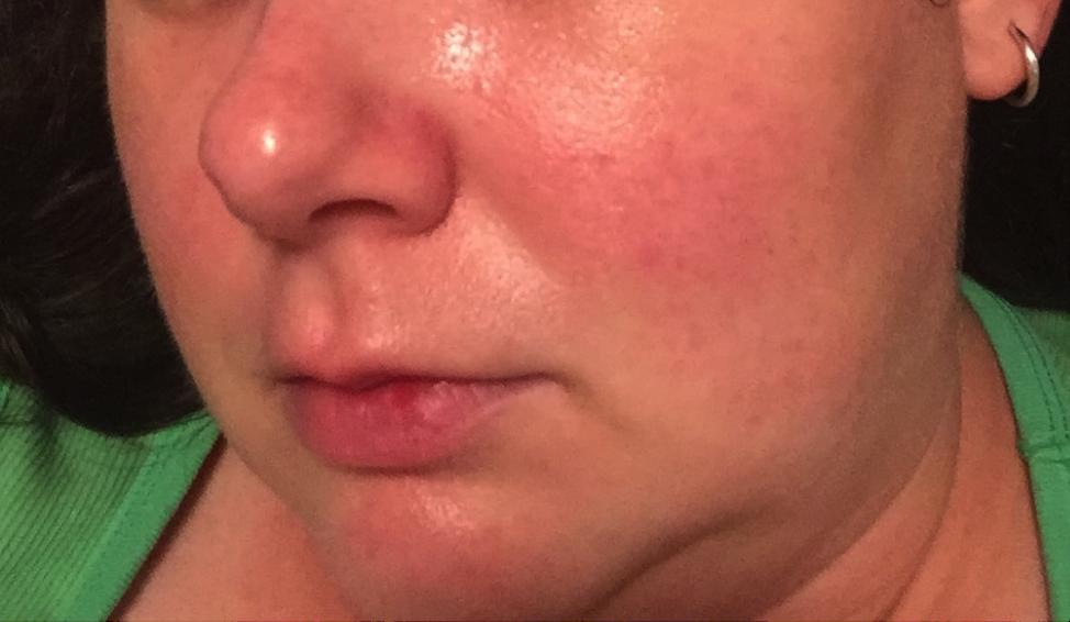Sensitive skin rosacea